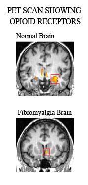 opioid-receptors-fibromyalg.jpg