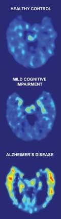 healty-alzheimer-brain.jpg