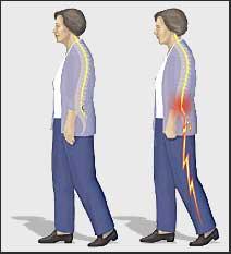 x-back-pain.jpg